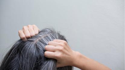Scapă de firele albe de păr, în mod natural! Secretul constă în doar două ingrediente simple