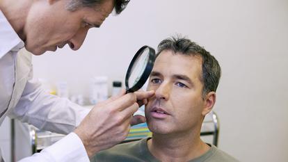 Carcinomul cutanat este cel mai frecvent cancer de piele