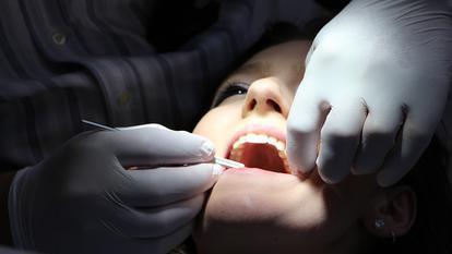 (P) Implanturi dentare în Clinica Stomatologică Dental Excellence