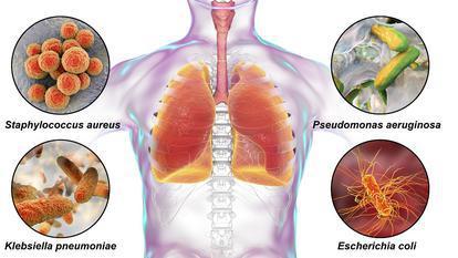 Ce sunt infecțiile nosocomiale și care sunt cele mai des întâlnite microorganisme în spitalele din România