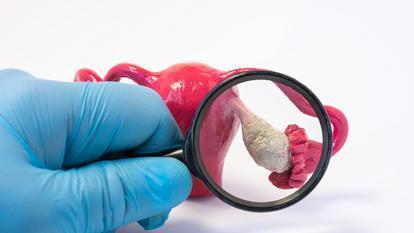 Atenție, cancerul ovarian se confundă des cu alte afecțiuni având simptome identice