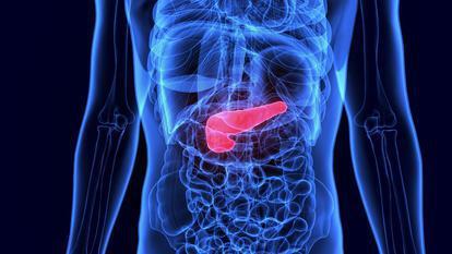 De ce e descoperit târziu cancerul pancreatic