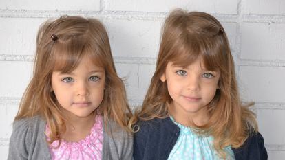 Povestea celor mai frumoase fete gemene din lume