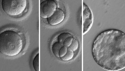 Premiera in lumea medicala A fost editat ADN-ul unui embrion uman