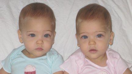 Au 7 ani si sunt considerate cele mai frumoase gemene din lume. Cum arata acum - Galerie foto