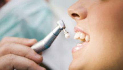 Cum stai cu smaltul dintilor?