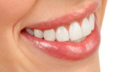 Soluţii pentru dinţi mai albi