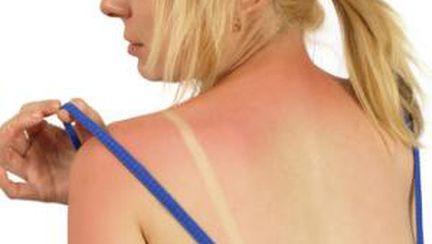 Cum te protejezi în timpul codului roşu de radiaţii UV