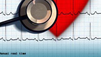 Bolile de inimă – oricine poate avea soarta lui Liz Taylor