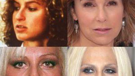 Top 6 vedete cu cele mai urâte nasuri operate