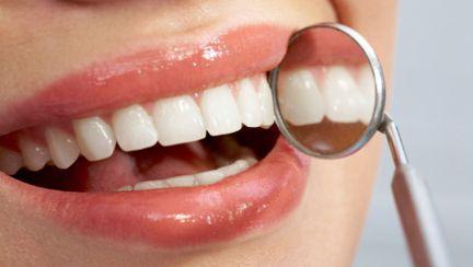 """Stomatologie: Dinţii stricaţi îţi """"mănâncă"""" sănătatea. Află cum!"""