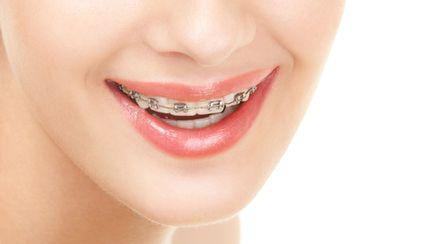 Stomatologie: Aparatul dentar, o soluţie pentru dantura ta