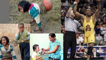Incredibil: Oameni fără picioare şi poveştile lor extraordinare
