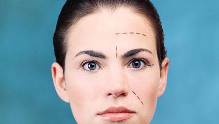 Chirurgia de remodelare a nasului – ești eligibilă pentru rinoplastie ?