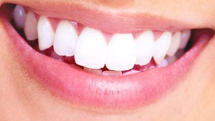 Ce trebuie să cunoşti despre faţetele dentare