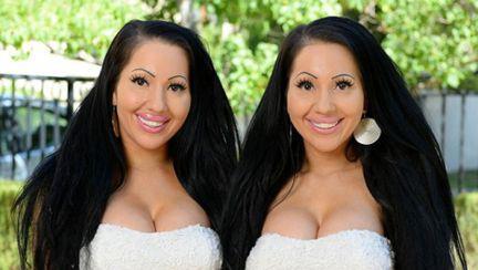 Surori gemene, s-au operat ca să fie identice şi împart iubitul
