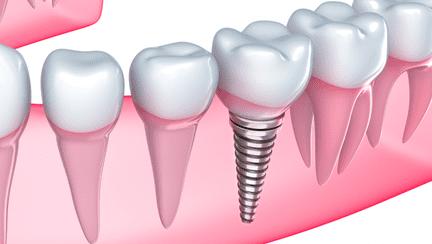 Ghidul pacientului: Beneficiile funcționale și estetice ale unui implant dentar rapid