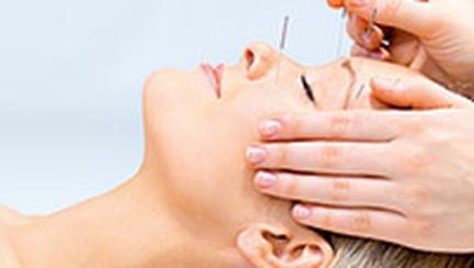 Acupunctura cosmetica mi-a intinerit fata cu 7-8 ani