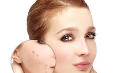 5 rețete de măști faciale naturale pentru tenul gras