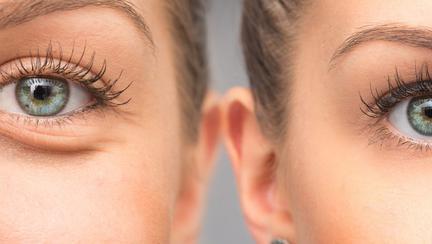 Cum să scapi de pungile de sub ochi? Iată 5 trucuri care dau rezultate în doar câteva minute