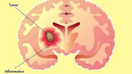 ce este meningiomul