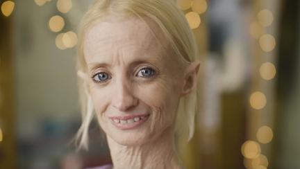 Femeia care îmbătrânește de 8 ori mai repede decât ar fi normal