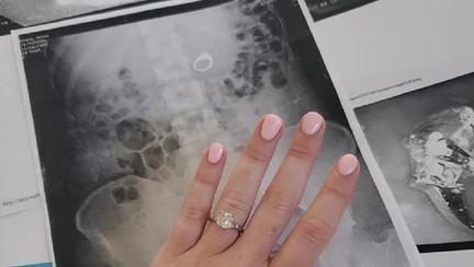 Și-a înghițit inelul de logodnă în timp ce dormea