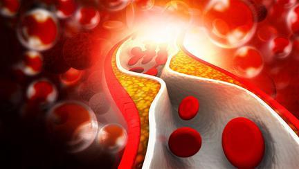 cum scazi nivelul de colesterol din sange