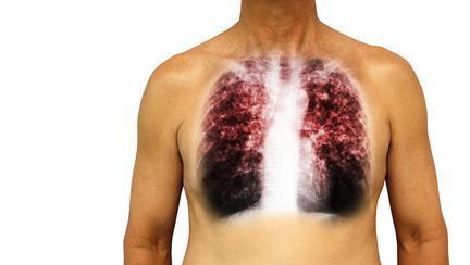 in cat timp se instaleaza pneumonia