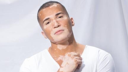Vitiligo l-a făcut mai special: un model brazilian nu-și mai ascunde imperfecțiunile pielii