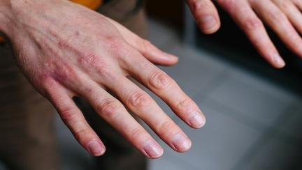 Spălatul excesiv pe mâini