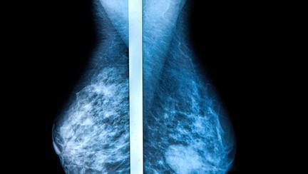 Ai sâni denși? Ce este densitatea sânilor și de ce este importantă?