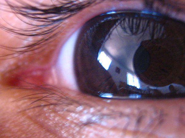 Glaucomul – o afecţiune ce nu trebuie trecută cu vederea