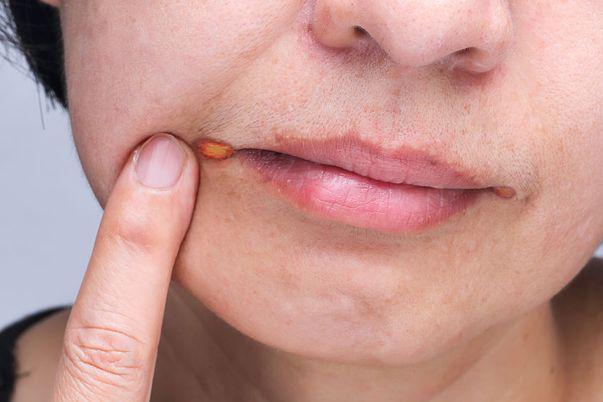 remedii naturale pentru a trata și preveni stomatita angulară