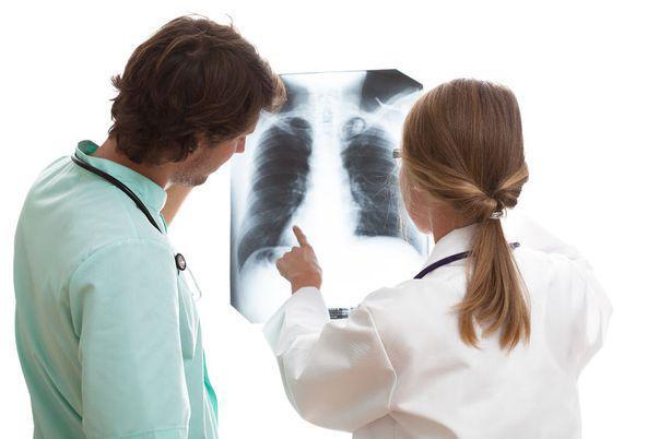 cancerul la plămâni