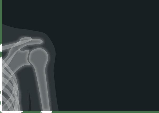 Osteomalacie - afecțiune ce constă în fragilizarea oaselor, cauzată în general de o carență de vitamina D, care conduce la curbarea oaselor sau la fracturi. Imagine cu radiografie