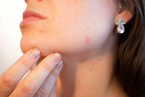 14 mituri despre acnee pe care nu ar trebui sau ar trebui să le crezi