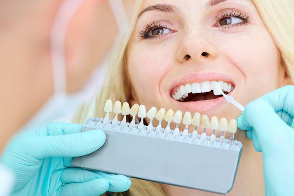 fațetele dentare puse incorect