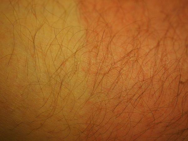 Cancerul de piele de tip non-melanom este un tip de cancer cutanat. Cancerul cutanat apare mai ales pe porțiunile de piele expuse la soare și constă în dezvoltarea de celule ale pielii anormale. Riscul de cancer al pielii poate fi redus prin limitarea expunerii la radiațiile ultraviolete. Imagine cu arsură solară care constituie un factor de risc