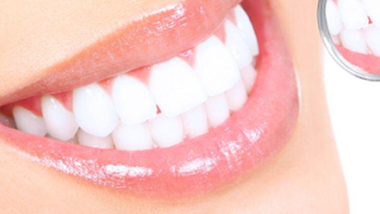 Cum să scapi de durerea de dinţi