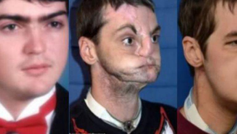 Şocant: Top 4 oameni cu transplant de faţă. Uite cât de mult s-au schimbat!