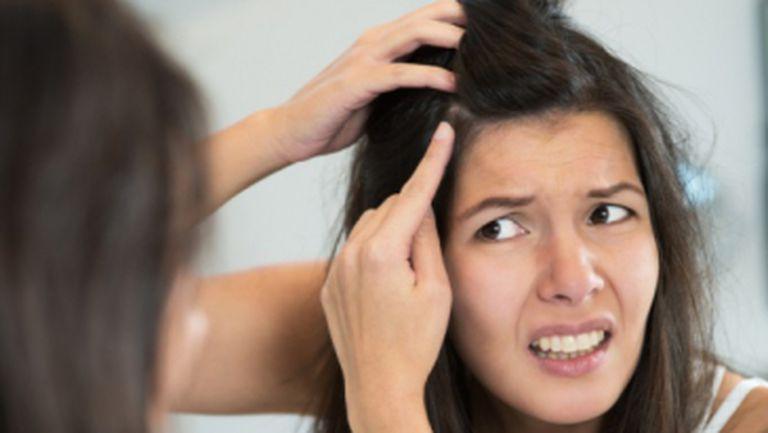 Coşuri pe pielea capului? Vezi cum scapi de ele