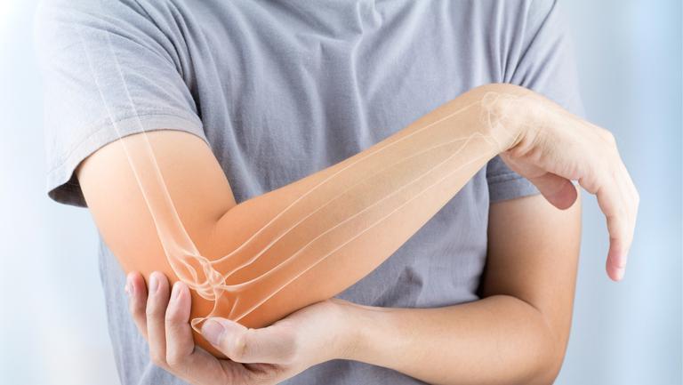 Cum să scapi de osteoporoză cu un tratament inedit! Este foarte ușor, iar rezultatele sunt incredibile