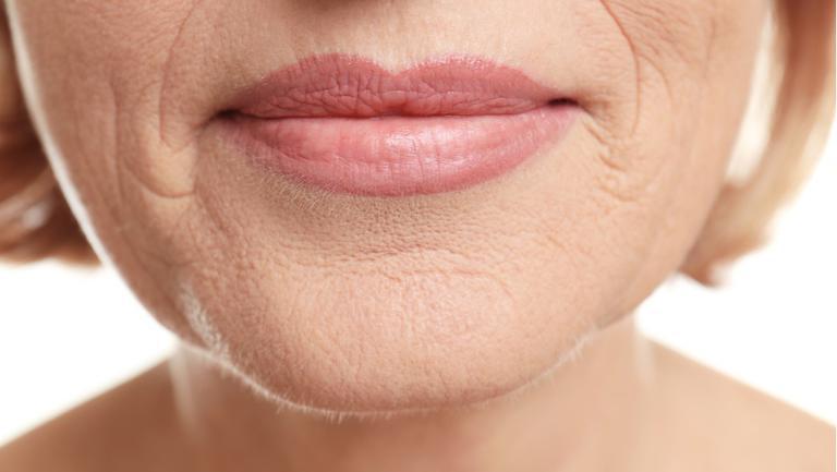 Cum poți estompa ridurile din jurul gurii