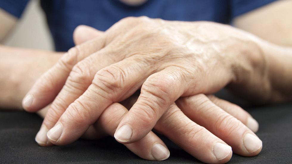 dacă artrita reumatoidă nu este tratată