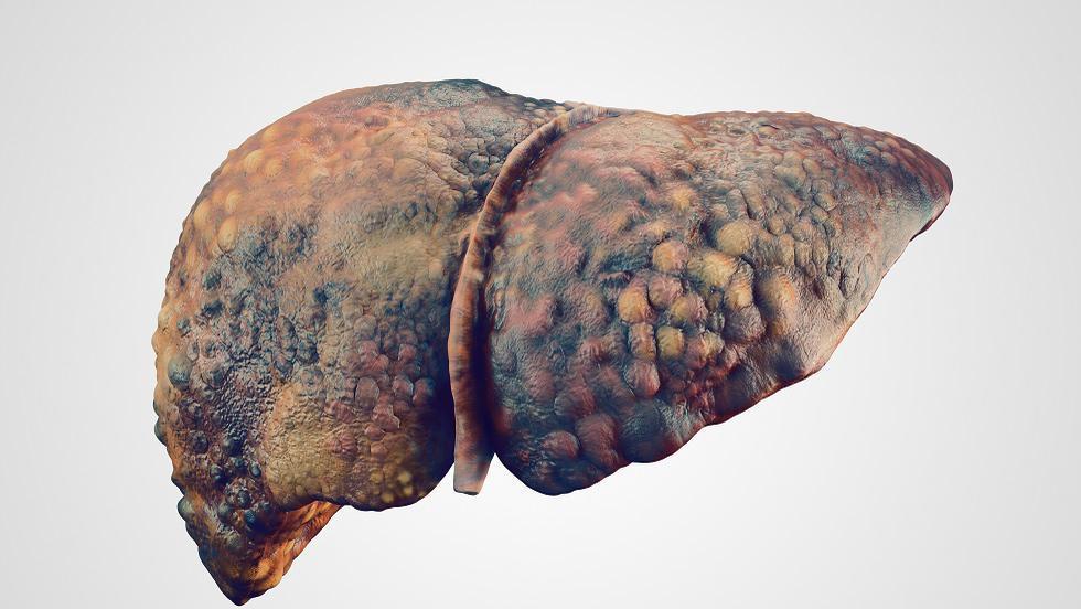 ficatul unui bolnav de carcinom hepatocelular