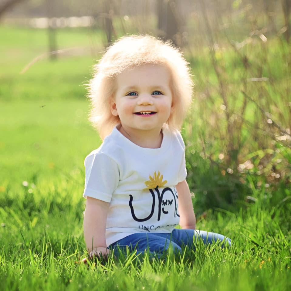 sindromul parului incontrolabil fetita